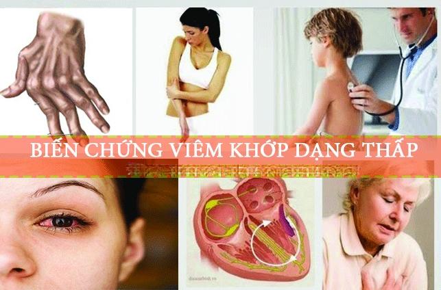 Mọi điều về viêm khớp dạng thấp: Nguyên nhân, dấu hiệu, nguyên tắc & cách điều trị bệnh