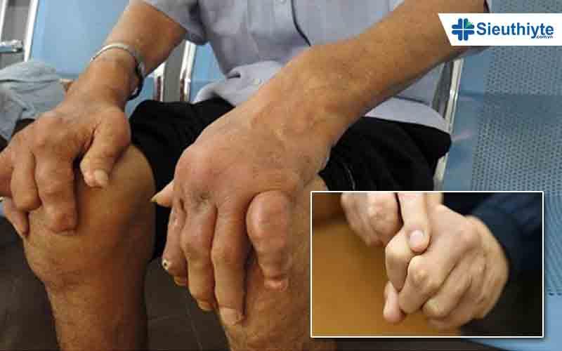 Biến chứng của bệnh gút tại khớp