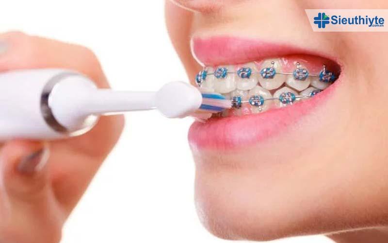 Bàn chải điện cho trẻ chính là giải pháp vệ sinh răng miệng hiệu quả trong giai đoạn niềng răng