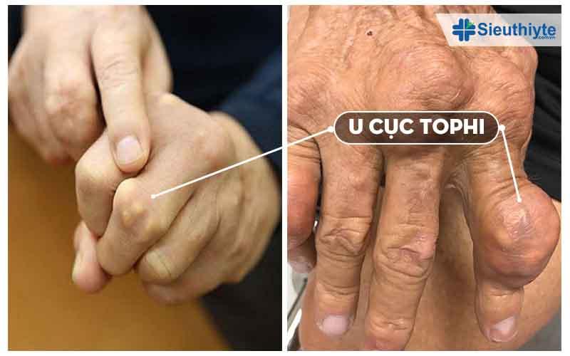 Cục u tophi là gì mà thường xuất hiện ở khớp ngón tay.