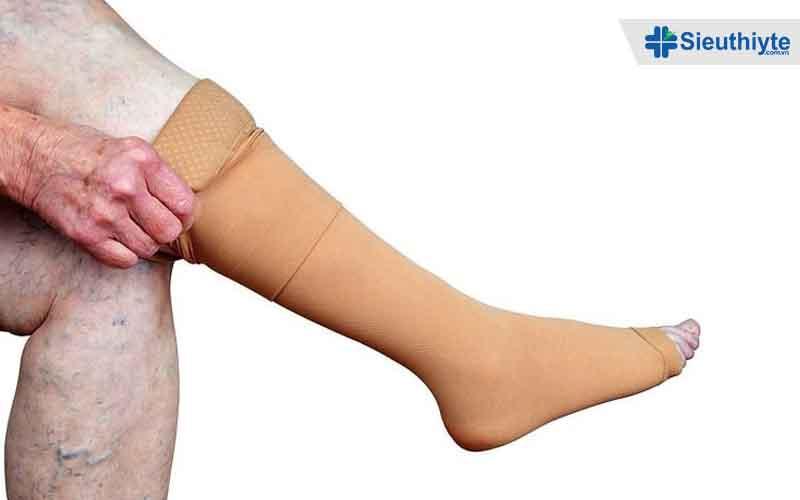 Vì sao vớ y khoa giãn tĩnh mạch chân được chuyên gia khuyên dùng
