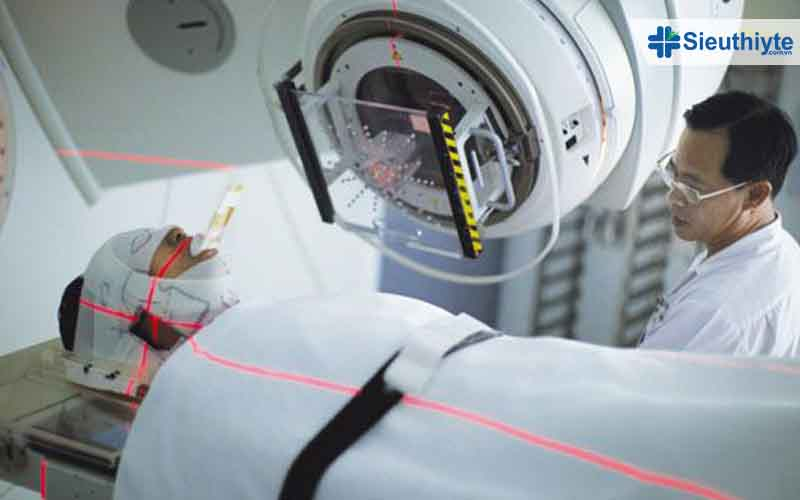 Bệnh nhân ung thư cần tìm hiểu xạ trị là gì
